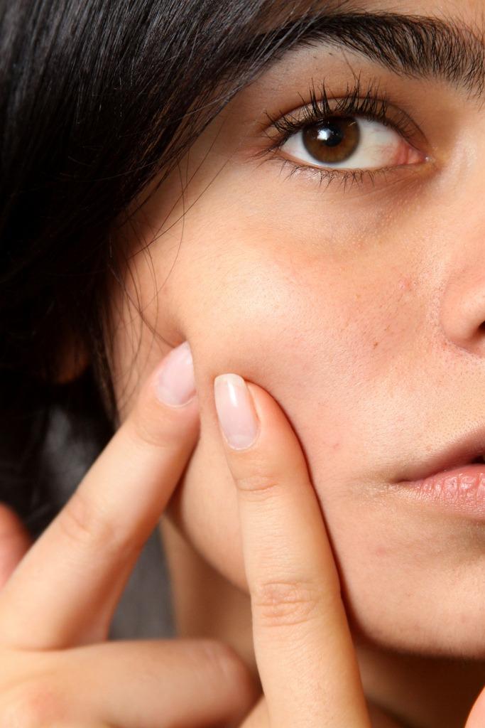 Soignez son acné avec le gel Differine, sans ordonnance préalable
