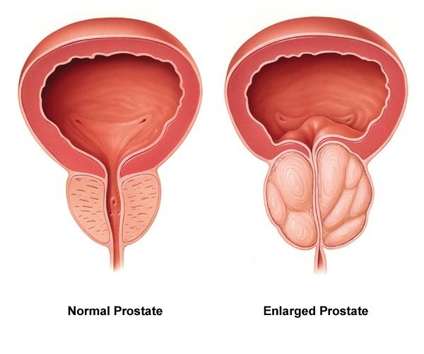 Finastéride, un médicament contre l'hypertrophie de la prostate