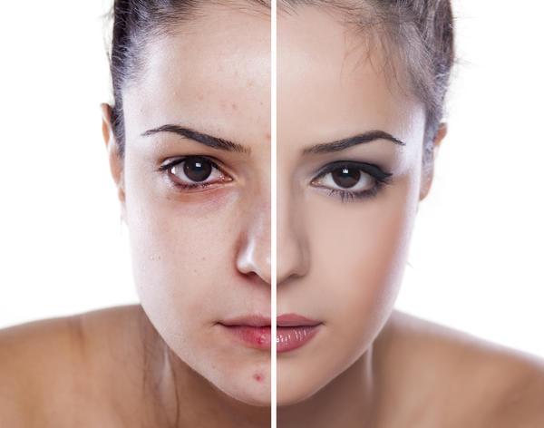La pilule Diane 35 est un traitement anti acné