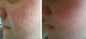 Avant après, bien traiter l'acné