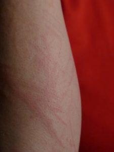 Les symptômes d'une allergie peuvent varier