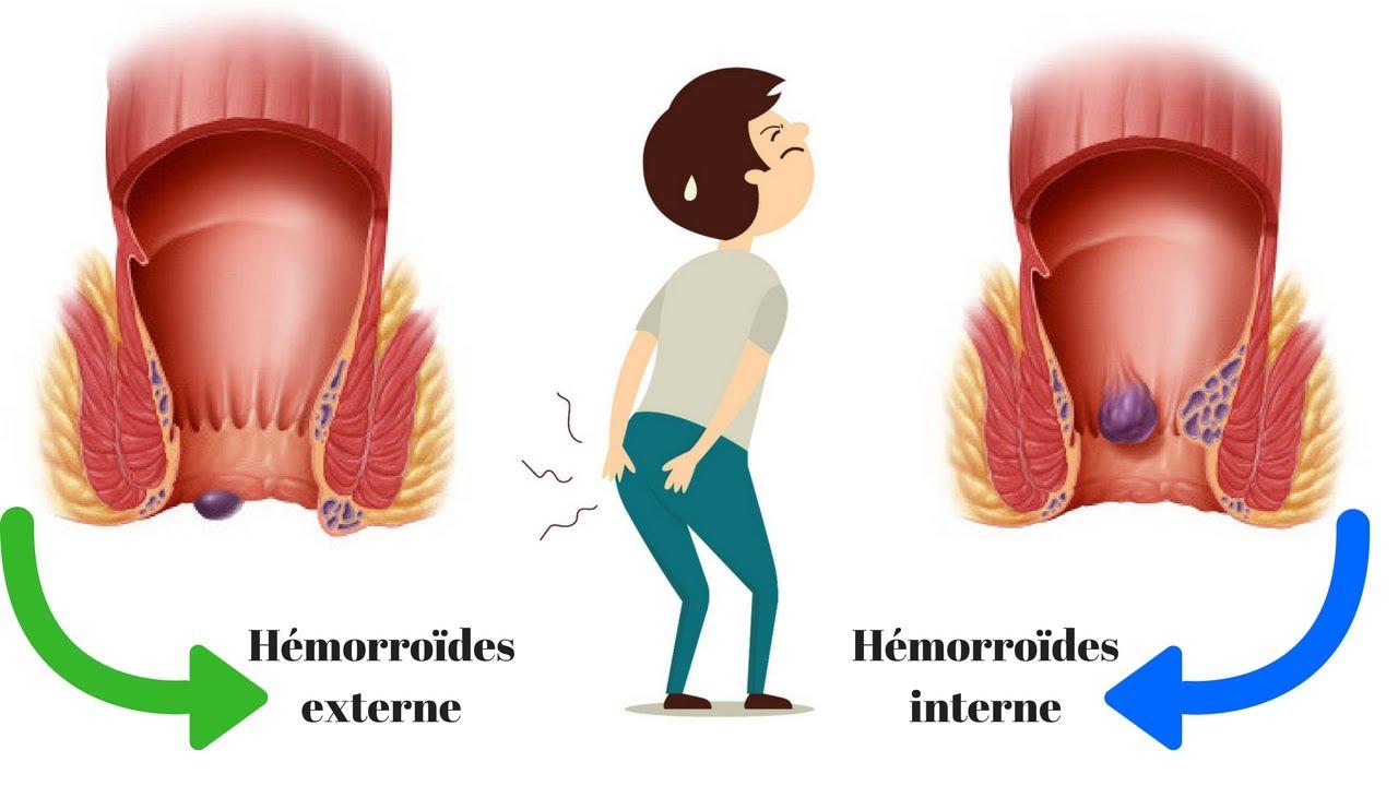 Hémorroïdes externes VS hémorroïdes internes
