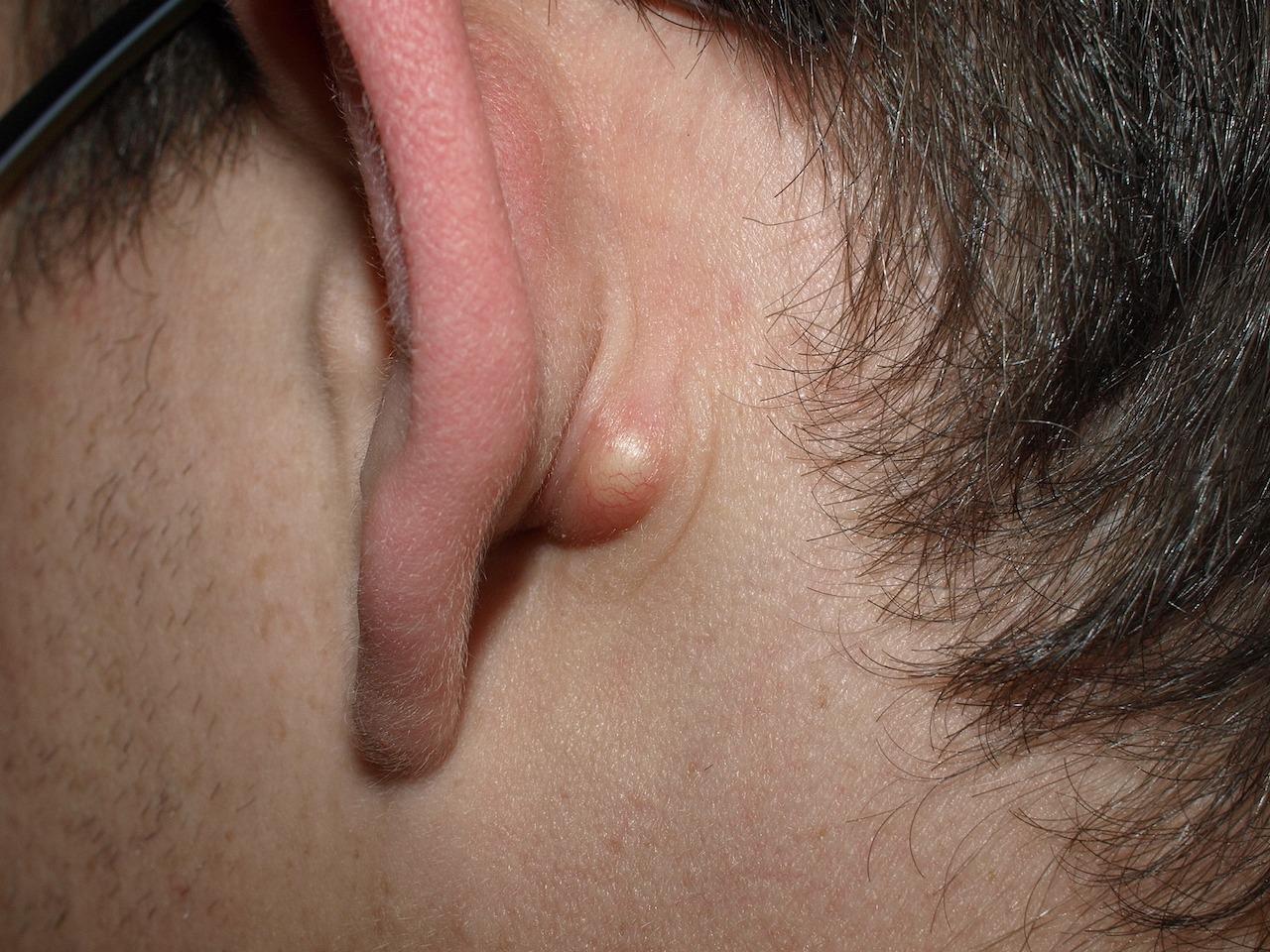 Kyste sébacé derrière l'oreille