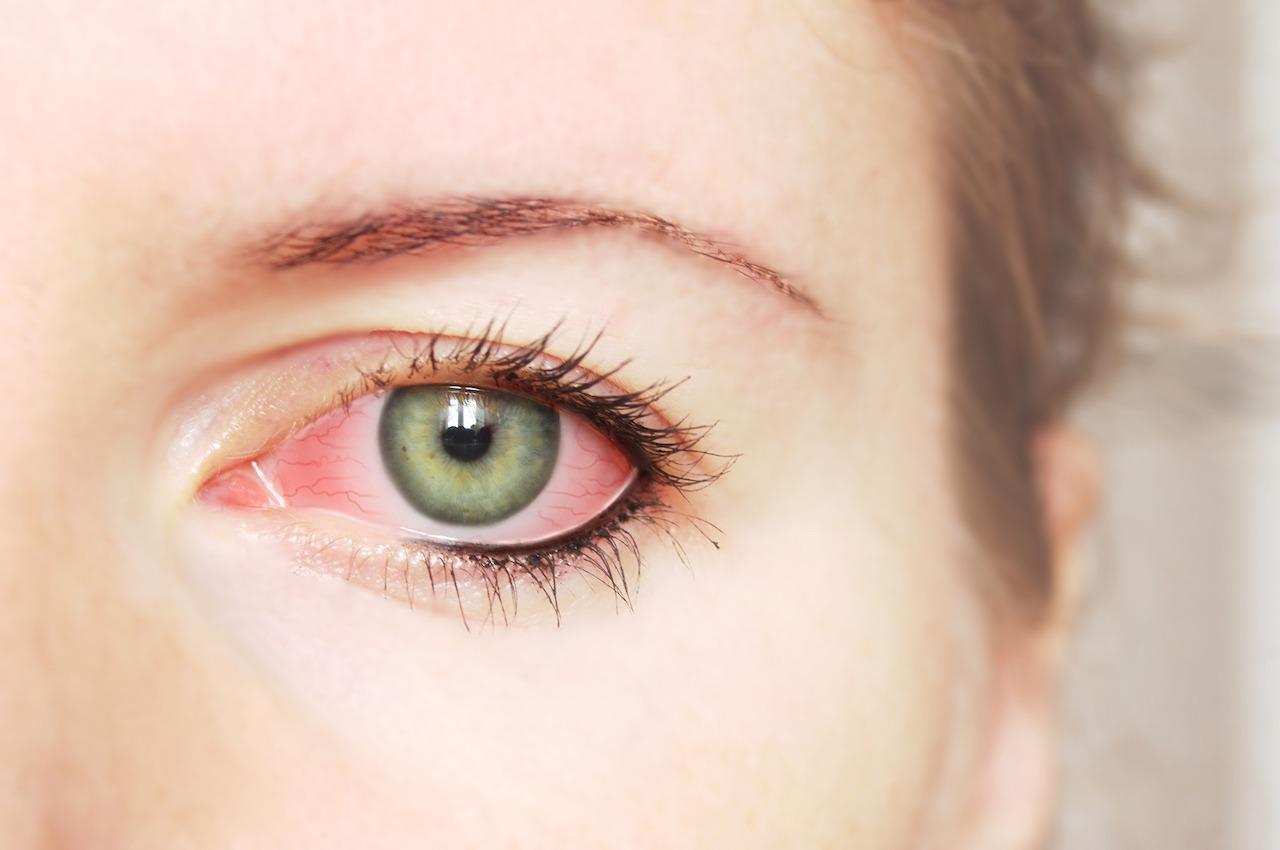 L'irritation des yeux est un des symptômes de la rosacée